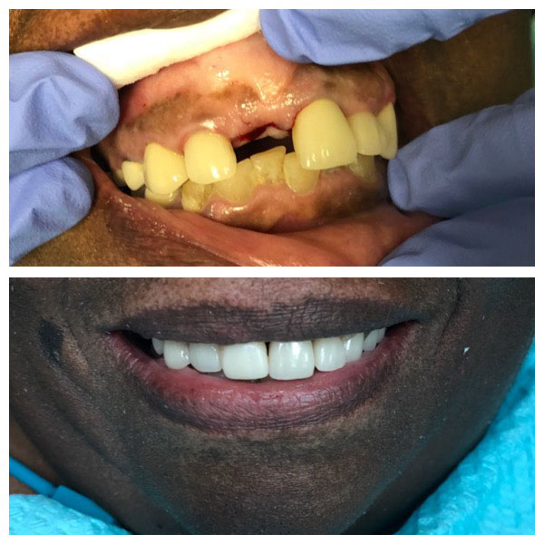 Before and After Dental Implants #1 Photo