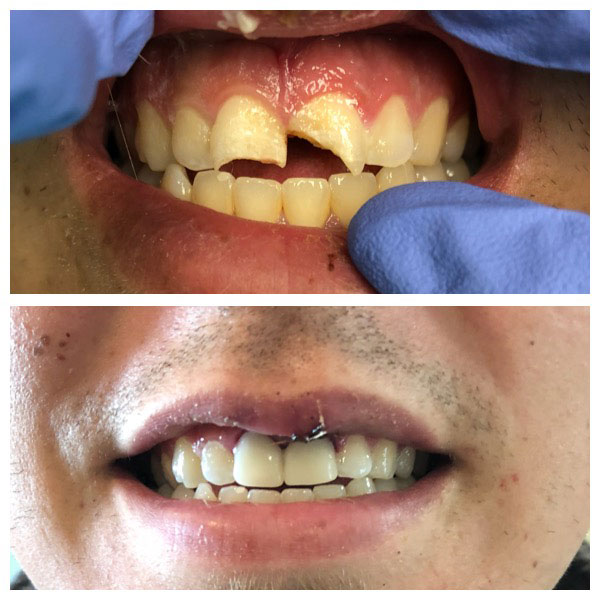 Before and After Same-Day Crowns #2 Photo