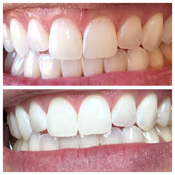 Before and After Teeth Whitening #1 Photo