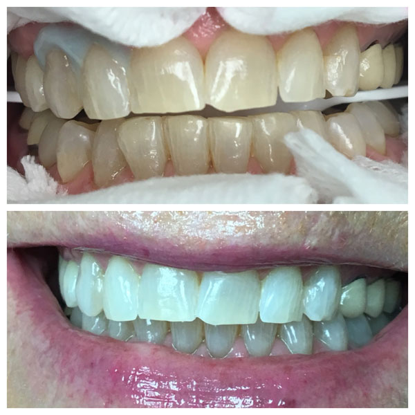 Before and After Teeth Whitening #2 Photo