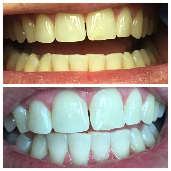 Before and After Teeth Whitening #3 Photo