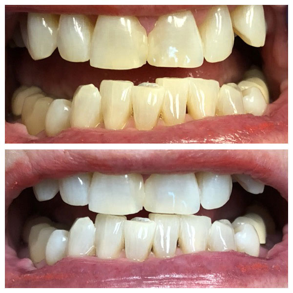 Before and After Teeth Whitening #4 Photo