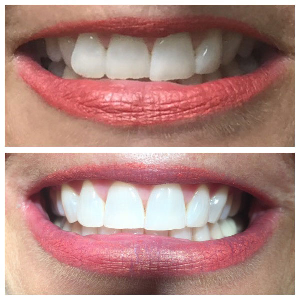 Before and After Teeth Whitening #5 Photo